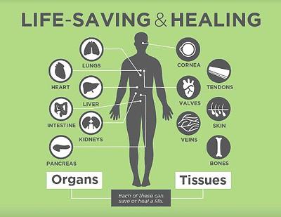organ_donation3